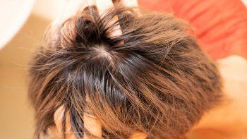 チャップアップ育毛ローションを頭皮に揉み込む画像